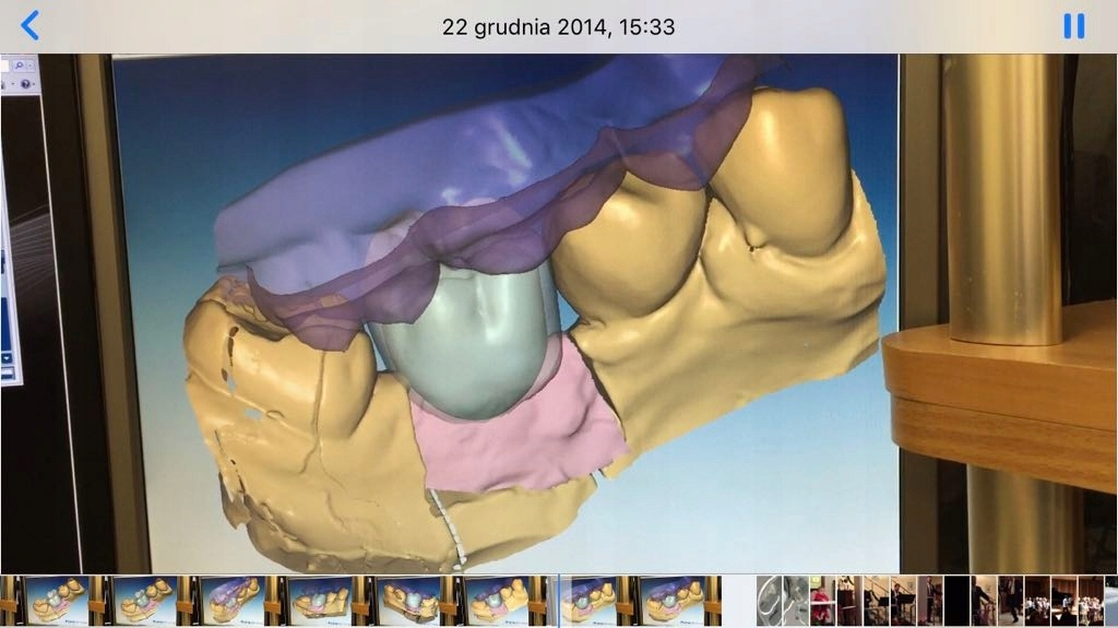 Exocad Anatomy